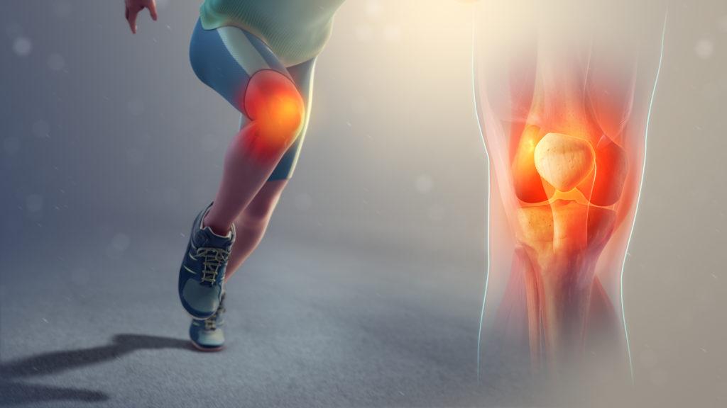 Courir avec un mal au genou